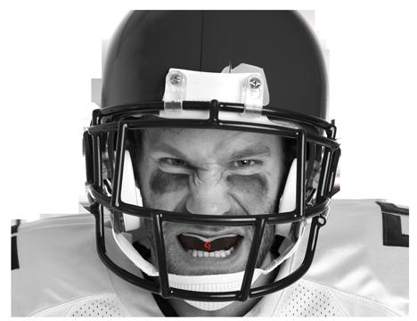 Custom mouthguard
