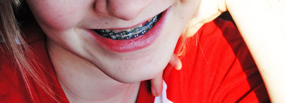 eade2459465 When It Comes To The Best Braces Mouthguard