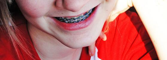 Braces mouthguard
