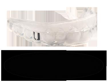 LeBron mouthguard